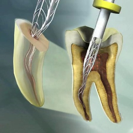 Everybody can treat root canals, but...